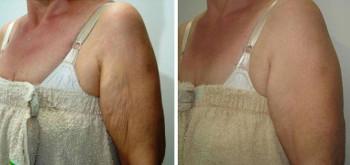 Armar, Skin tightening, före och efter