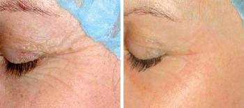 Ögon, lätt behandling, före och efter