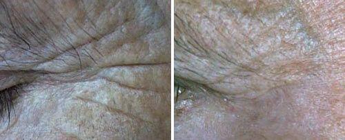 Ögon, före och efter