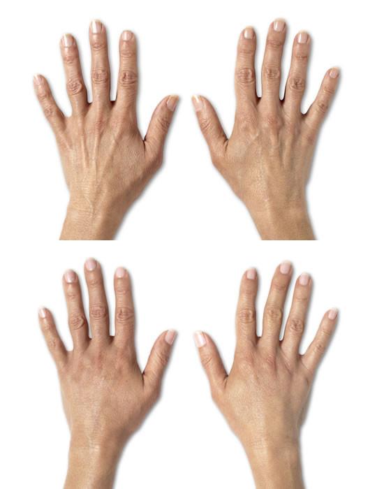 Radiesse passar utmärkt att användas för hudföryngring av händer. Effekten kan ses direkt men på lång sikt kommer också huden att bli fastare och se unge ut. Radiesse är den enda FDA-märkta fillern som återuppbygger kollagenet på handryggen.