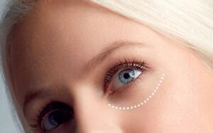 vårtor runt ögonen